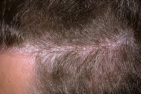 Симптомы псориаза на голове
