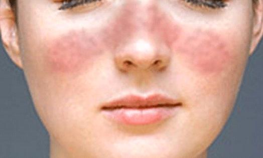 туберкулез кожи на лице