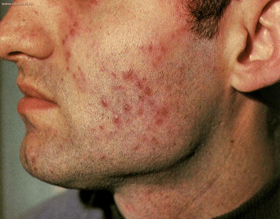 лихеноидный туберкулез кожи