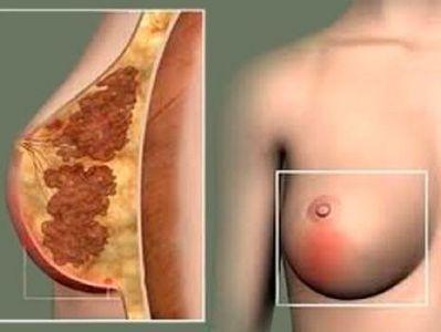 липома на молочной железы