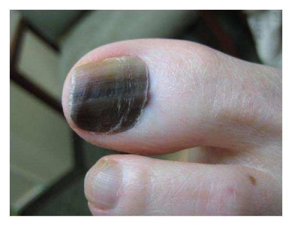 меланома ногтей