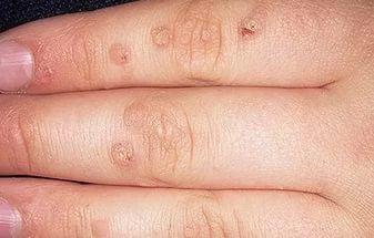 плоские бородавки на руках