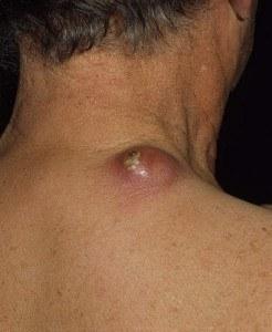 карбункул симптомы